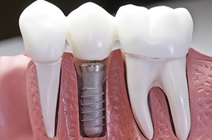 Dental implant testing